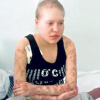 Húsevő drog miatt amputálták a lány karját
