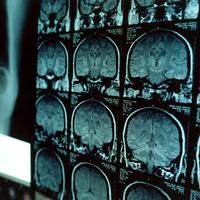 A függőség inkább biológiai, mint lelki eredetű betegség az új kutatások szerint