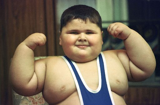 Obesity-in-childhood.jpg