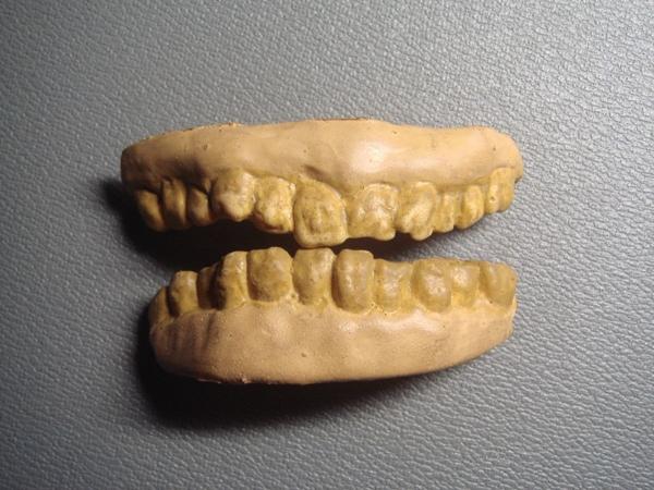 dientes-zombie-chascos-teatro-importados_MLA-F-2556399422_032012.jpg