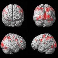 A halál és ölés neurokognitív alapjai