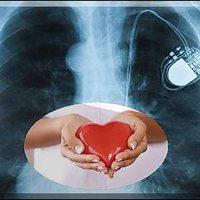 Igazi szívás - műszívvel