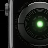 Független klinikai teszteken hasonlították össze az Apple Watch 4 EKG-t másokkal