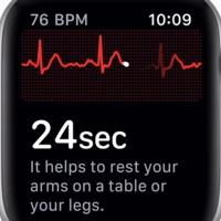 Mennyire fejlett az Apple Watch Series 4 EKG-je a magyar WIWE megalkotói szerint?