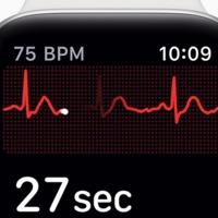 Mire képes, és mire nem képes az Apple Watch EKG?