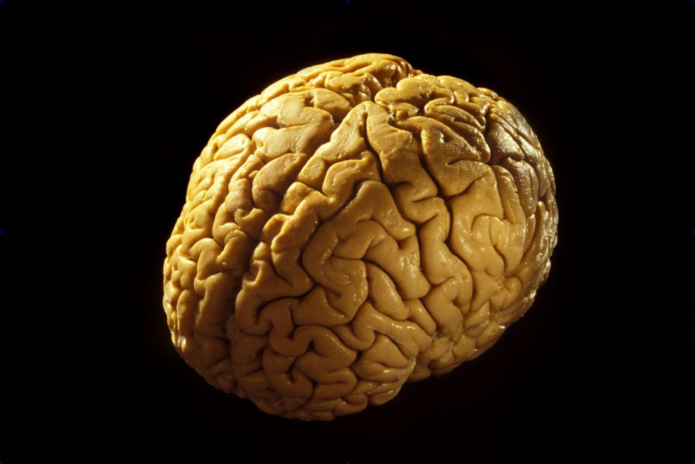 cerebrum-brain-573371915f9b58723d565be5.jpg