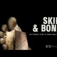A hét videója: Az emberi testrész-biznisz árnyoldalai
