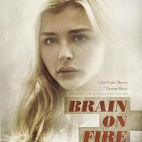 Lángoló agy