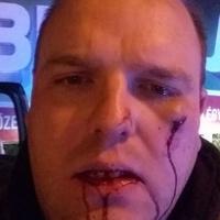 Durvul: kiverték fogát az egyik jobbikosnak, a másikra fegyvert fogtak