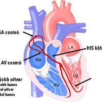 Így működik az EKG készülék