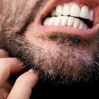 A szakállasok leggyakoribb problémája - a viszketés.