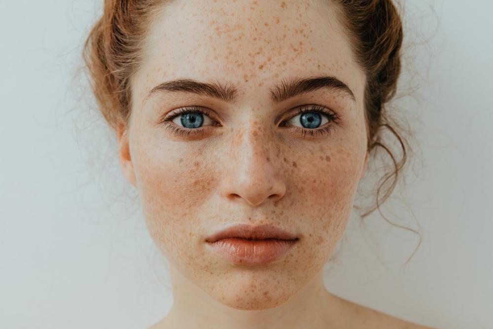 leszokni a pigmentációs foltok eltűntek