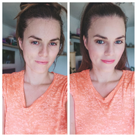 Így ápold a korpás szeborreás arcbőrt