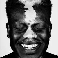 Ugye mennyire különlegesek a vitiligós és a szeplős emberek?