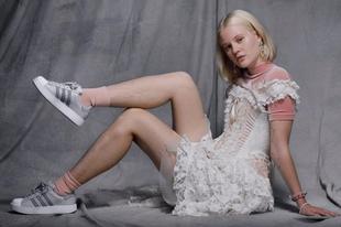 Szőrös lábú női modellel hirdet az adidas