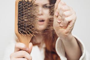 Top 5 tipp hajhullás ellen!