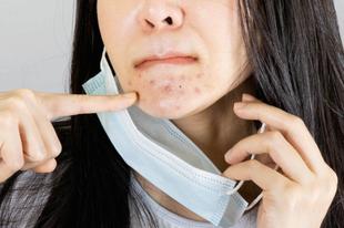 Hallottál már a Maskne-ról? - Bőrbetegség kisokos a maszk hordásától