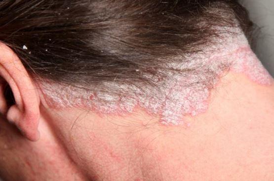 psoriasis-on-scalp.jpg