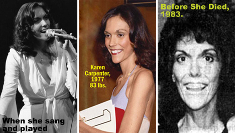 karen_carpenter_anorexia.jpg