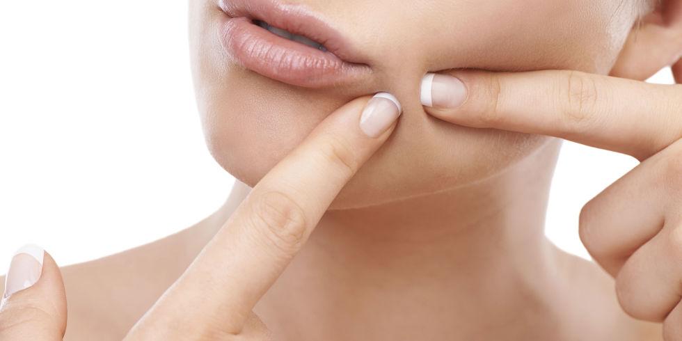 acne-186696121.jpg