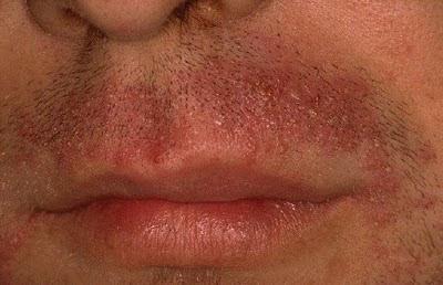 vörös foltok az arcon a szőrtelenítés után)