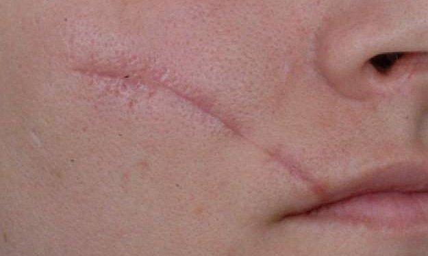 get-rid-of-scars.jpg