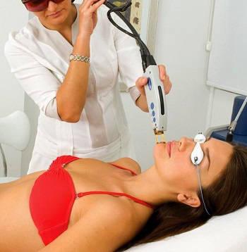 safe-laser-removal-treatment.jpg