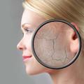 A bőrszárazság okai, kezelése