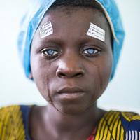 7 évesen 80 kilométert gyalogolt az őserdőben, hogy visszakaphassa látását