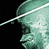 Extrém röntgenképek