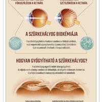 Infografika: 6 tény a szürkehályog kialakulásával kapcsolatban