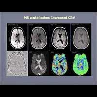 CCSVI diagnosztika MRI-vel - Dr. Haacke előadása