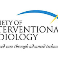 Intervenciós Radiológusok Társasága: Támogatjuk a CCSVI-t! - frissítve