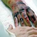 Hospitalizációs ártalmak. Darse cuenta