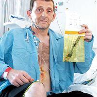 10 év után operáltak ki egy villát egy férfi gyomrából