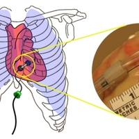 Szívsebész robothernyó
