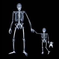 Röntgen fotográfia