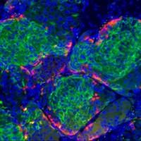 Sejttranszplantációval a cukorbetegség ellen