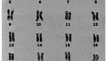 Olivér kromoszómái