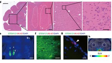 Egy ígéretes klinikai kísérlet: gyógyítható-e a Parkinson-kór őssejtekkel?