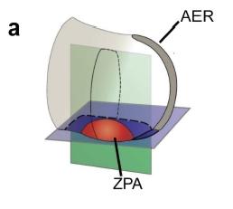 zpa2.jpg