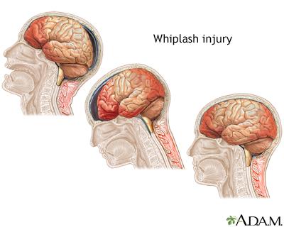 whiplash_injury_ADAM.jpg
