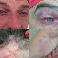 A horvát rendőrök is képesek szadista, büdös bunkókként viselkedni