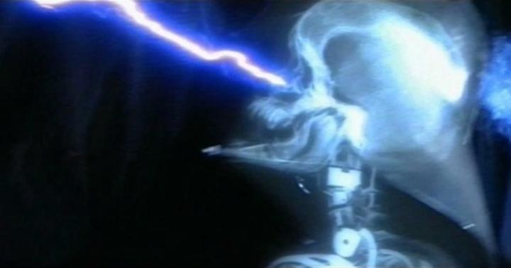 Az megvan, hogy Darth Vadernek eltört a nyaka?