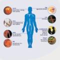 A cukorbetegség (2. rész) - Szövődmények