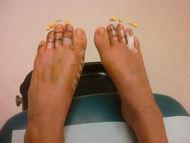 cinderella-surgery2.jpg