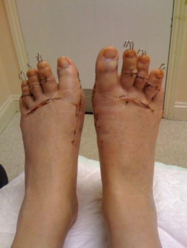 toes2.jpg