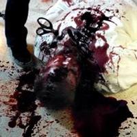 Freak Hospital - Autopsy trailer