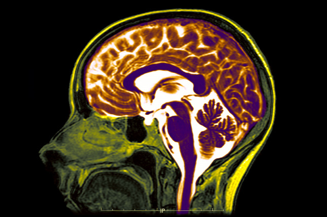 20180912agy-mri-brain-mri-investigate.jpg