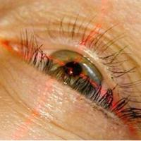 Élőben közvetít szemészeti műtéteket a Semmelweis Egyetem